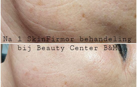 Rimpels verdwijnen met de SkinFirmor
