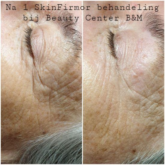 Rimpels verdwijnen met de SkinFirmor 1